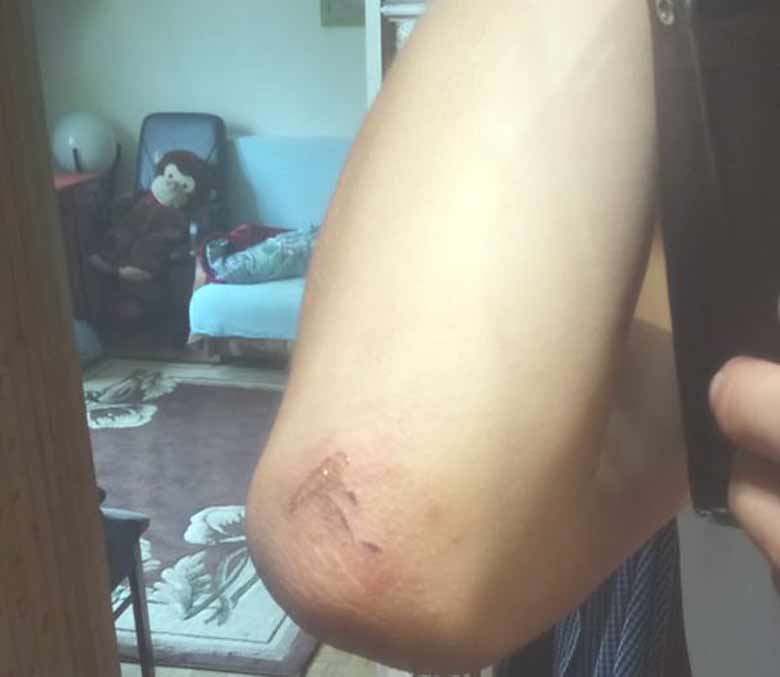 scratch elbow after Saab accident